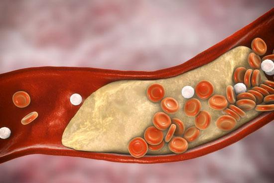 آیا لسیتین در کاهش کلسترول موثر است؟