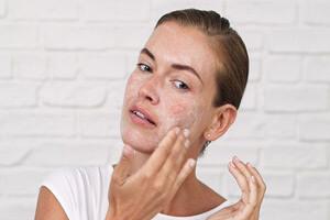 لایه برداری از پوست با اسید سیتریک