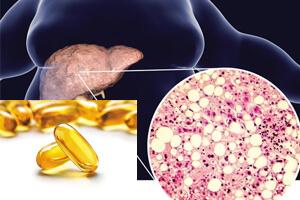 مشتقات لسیتین، کاهش کبد چرب و بهبود حساسیت به انسولین