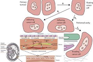 ترکیب کربوکسی متیل سلولز و هپارین برای پیشگیری از چسبندگی جراحی