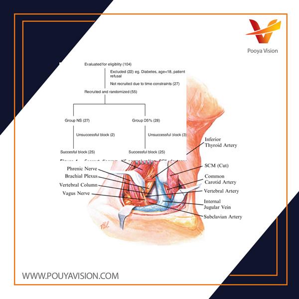 زمان شروع سریعتر بلوک التهاب سوپراکلوویکور با استفاده از بیحسی موضعی رقیق شده با دکستروز بیحسی موضعی رقیق شده با دکستروز